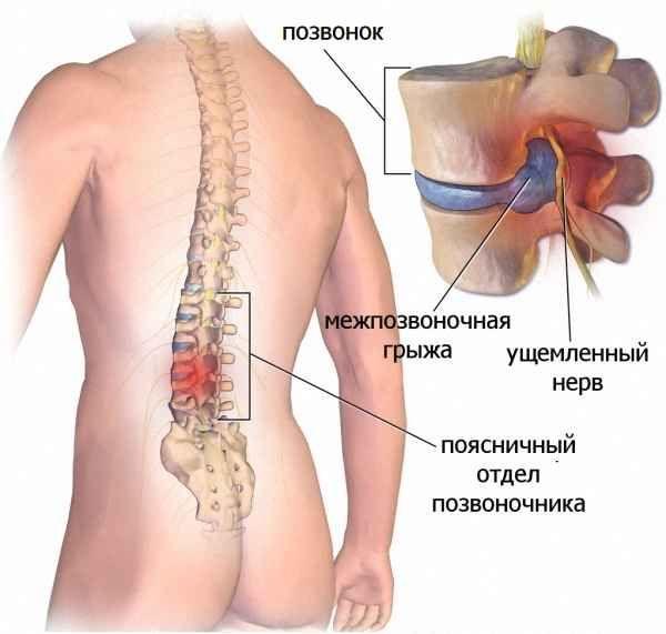 применение гормональных препаратов при грыже позвоночника