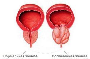 Патогенез простатита обуславливается развитием воспалительных процессов