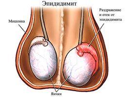 небольшое количество крови в моче и сперме