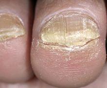 грибок ног симптомы