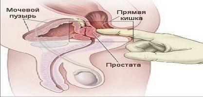 Комплексы упражнений, которые разработаны с целью лечения простатита, способствуют укреплению тазовых мышц