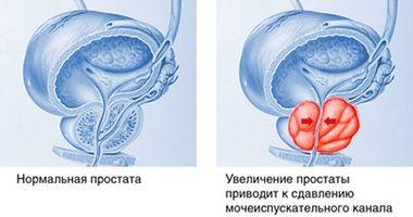 Действие тренировок и упражнений направлены на то, чтобы укрепить мускулы ануса