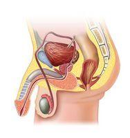Лечение простатита производится за 7- 14 сеансов