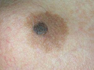 На фото себорейный кератоз в виде коричневого пятна вокруг родинки.