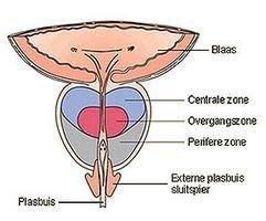 Простатит является одним из самых распространённых урологических заболеваний у мужчин