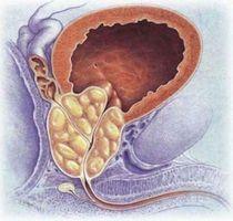 Можно уверенно сказать, что Ломфлокс может использовать для лечения мочеполовых инфекций