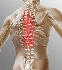фонофорез при остеохондрозе