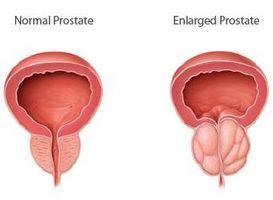 Аденома простаты – распространенное заболевание среди мужчин старше среднего возраста