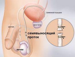 Первые симптомы недуга должны привести мужчину на осмотр к урологу