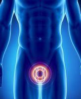 Среди больных хроническим простатитом есть мужчины, страдающие от этого недуга год или два