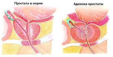 Сок простаты становится более вязким, и не может в достаточной степени обеспечить подвижность мужских половых клеток