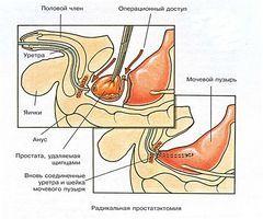 Культура доения предстательной железы
