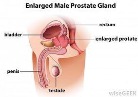 Научная медицина постоянно находится в поиске совершенных средств лечения простатита