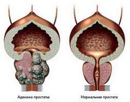 капли от простатита