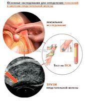 От степени развития опухоли зависит и необходимое лечение