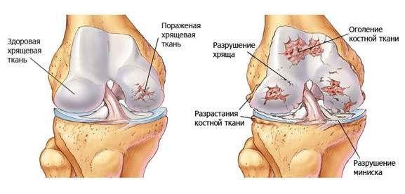 лечение деформирующего артроза коленного сустава