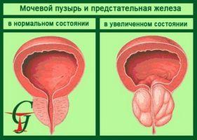 Одним из осложнений хронического воспаления предстательной железы является калькулезный простатит