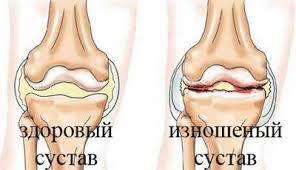 коленный артроз симптомы
