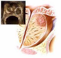 Тестогенон оказывает комплексное воздействие на мужской организм