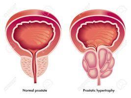Препарат может вызывать повышение артериального давления