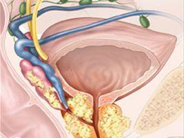 При наличии аденомы простаты или простатита, которые только начали развиваться, избавиться от болезней можно без операций