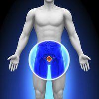 диета после удаления аденомы-4