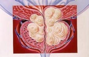 На сегодняшний день, есть два типа температурного влияния на уретру и предстательную железу