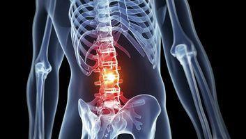 эффективное средство от остеохондроза, артрозов и травм