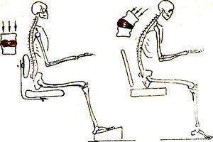 Эффективно снимает гипертонус мышц