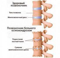 это средство, которое быстро устраняет боль от артрозов и остеохондроза