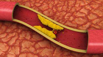 Недуги сердца – инсульт, инфаркт, стенокардия, ишемическая и коронарная болезни