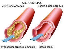 Мощное средство для снижения холестерина