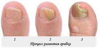 Лечит грибок стоп и ногтей