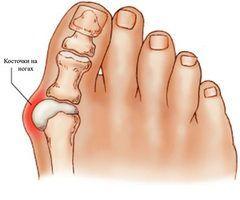 поперечным плоскостопием, в результате которого происходит распластанность плюсневых костей