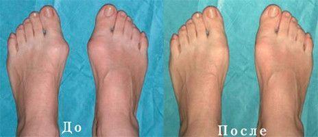 Деформация суставов на ногах
