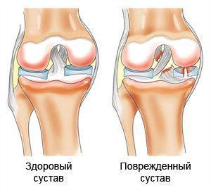 коленный мениск