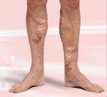 Прежде чем начать процесс лечения варикоза на ногах