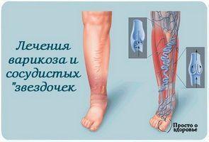 снимает боль, отечность и усталость в ногах