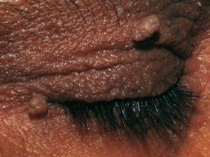 На фото папилломы кожи верхнего века, в виде выростов в форме картофеля