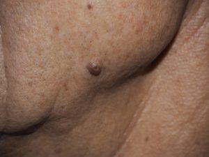На фото папилломы и бородавки типа внутридермальный невус.