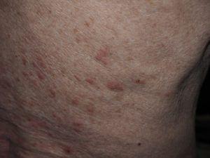 На фото папилломы на шее типа себорейный кератоз