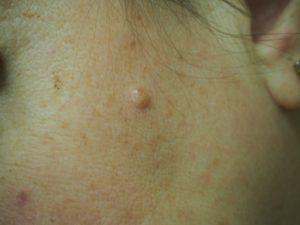 Папиллома фото на лице - невус.