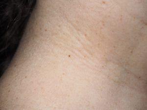 папилломы на шее, маленькие, темные.