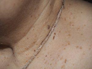 Папилломы на шее вида себорейный кератоз.