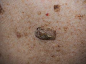 Папилломы на теле - фото себорейный кератоз.