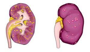 Пиелонефрит - симптомы, причины и своевременное лечение