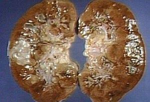 Клиническая картина пиелонефрита