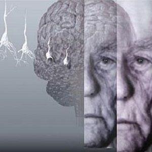Старческая деменция - лечение в Израиле