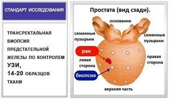 У предстательной железы довольно сильное кровообращение