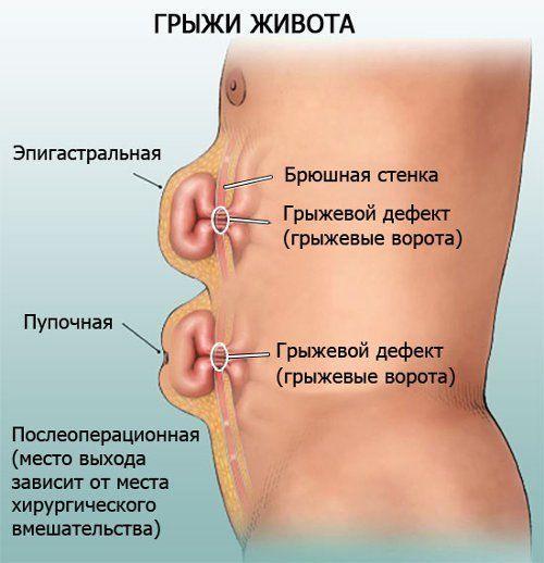 мышечное защемление живот